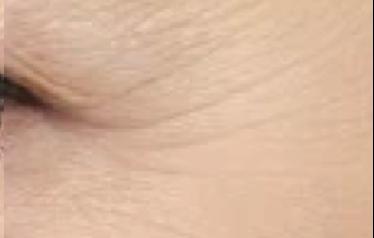 Noticeable Wrinkles