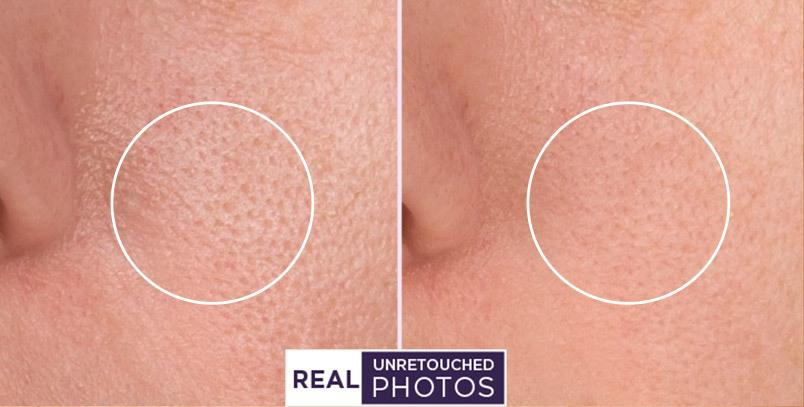 Before and after using Meaningful Beauty closeup pics of pores