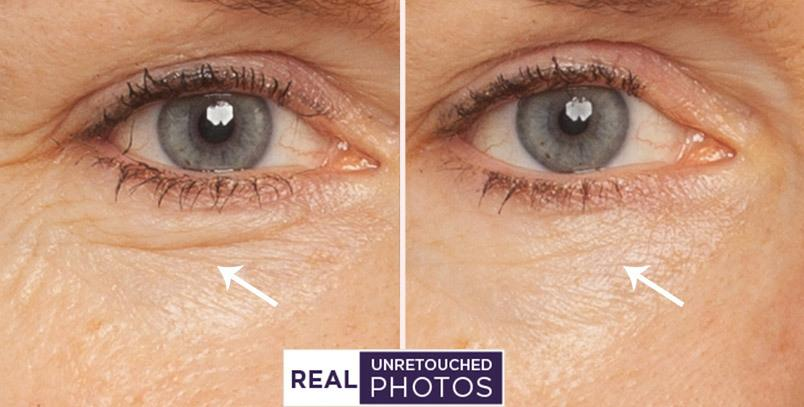 Before and after photos showing under eye results from Meaningful Beauty