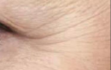 Pronounced Wrinkles
